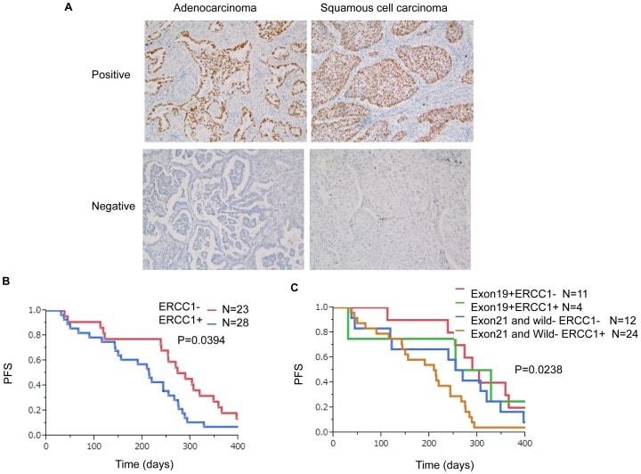 ERCC1 Antibody