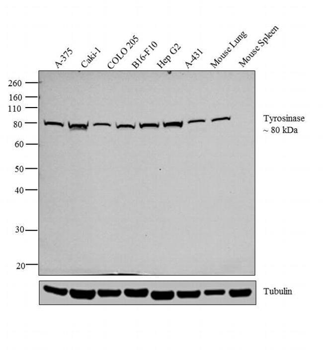 Tyrosinase Antibody in Relative expression