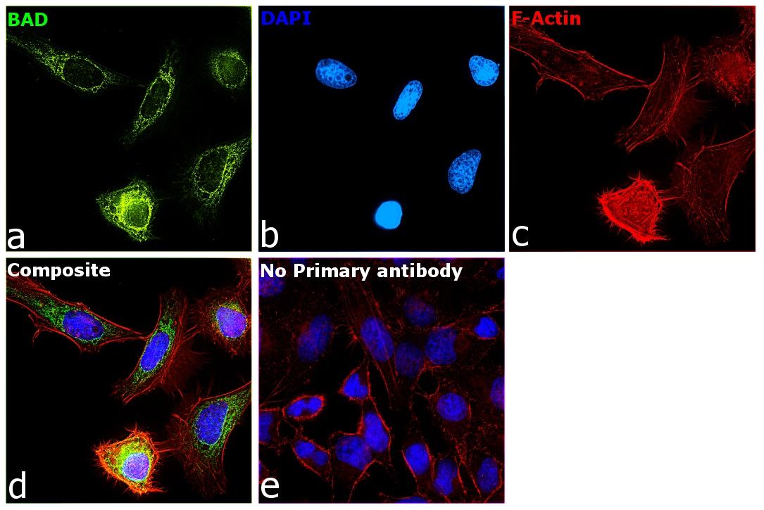 BAD Antibody in Immunocytochemistry (ICC/IF)