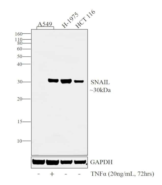 SNAIL Antibody in Cell Treatment