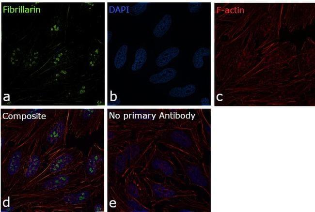 Fibrillarin Antibody in Immunofluorescence (IF)