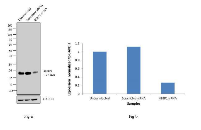 4EBP1 Antibody in Western Blot (WB)