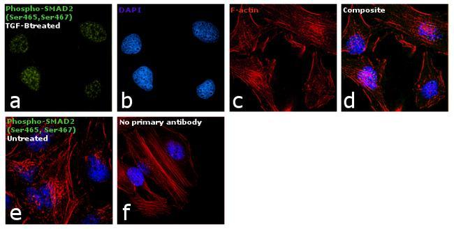 Phospho-SMAD2 (Ser465, Ser467) Antibody in Immunofluorescence (IF)