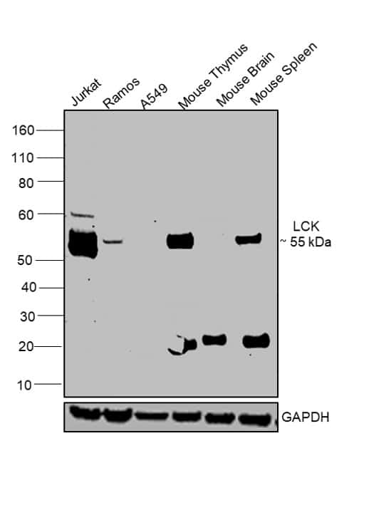 LCK Antibody in Relative expression