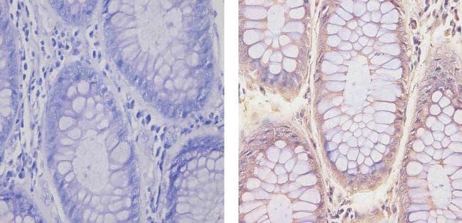 Glucocorticoid Receptor Antibody in Immunohistochemistry (Paraffin) (IHC (P))
