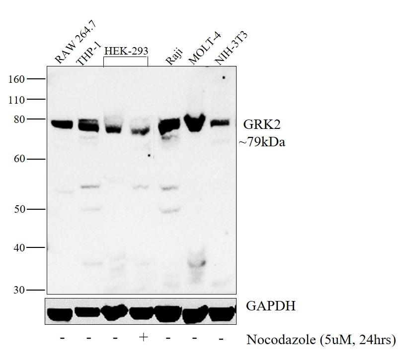 GRK2 Antibody in Western Blot (WB)