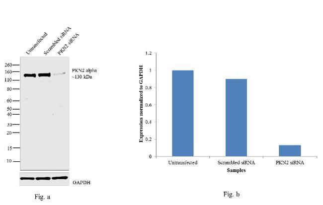 PKN2 Antibody in Western Blot (WB)