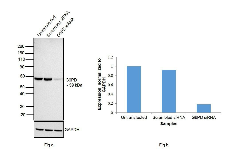 G6PD Antibody in Western Blot (WB)