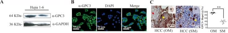 Glypican 3 Antibody