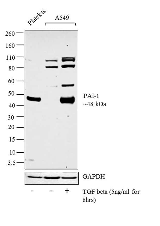 PAI1 Antibody in Cell treatment