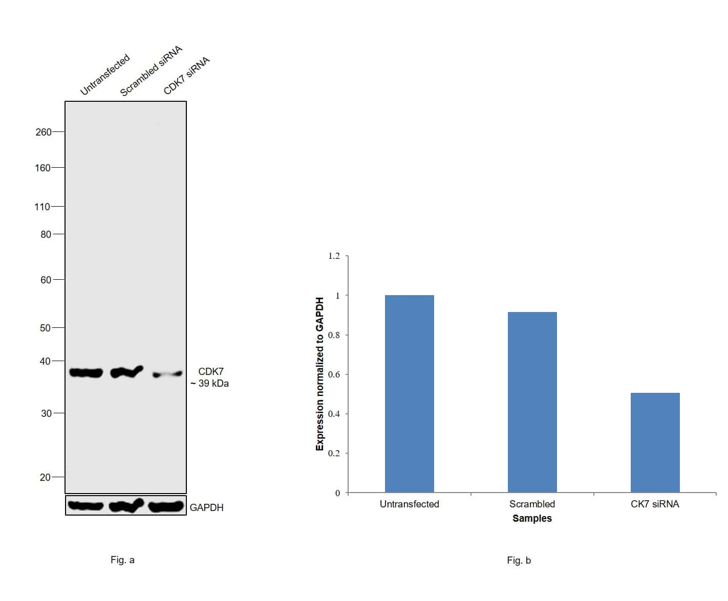 CDK7 Antibody in Knockdown