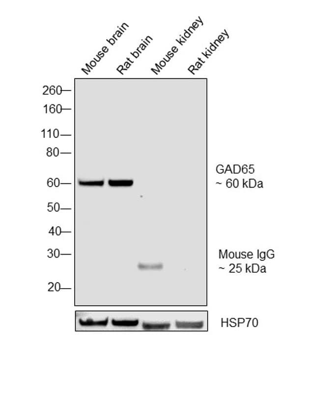 GAD65 Antibody in Relative expression