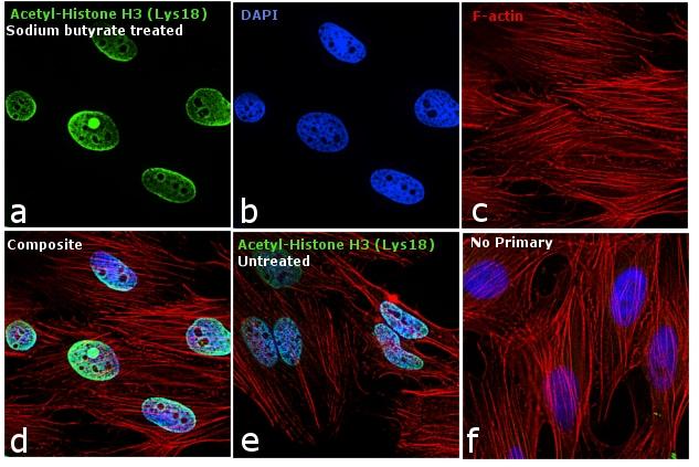 Acetyl-Histone H3 (Lys18) Antibody in Immunofluorescence (IF)