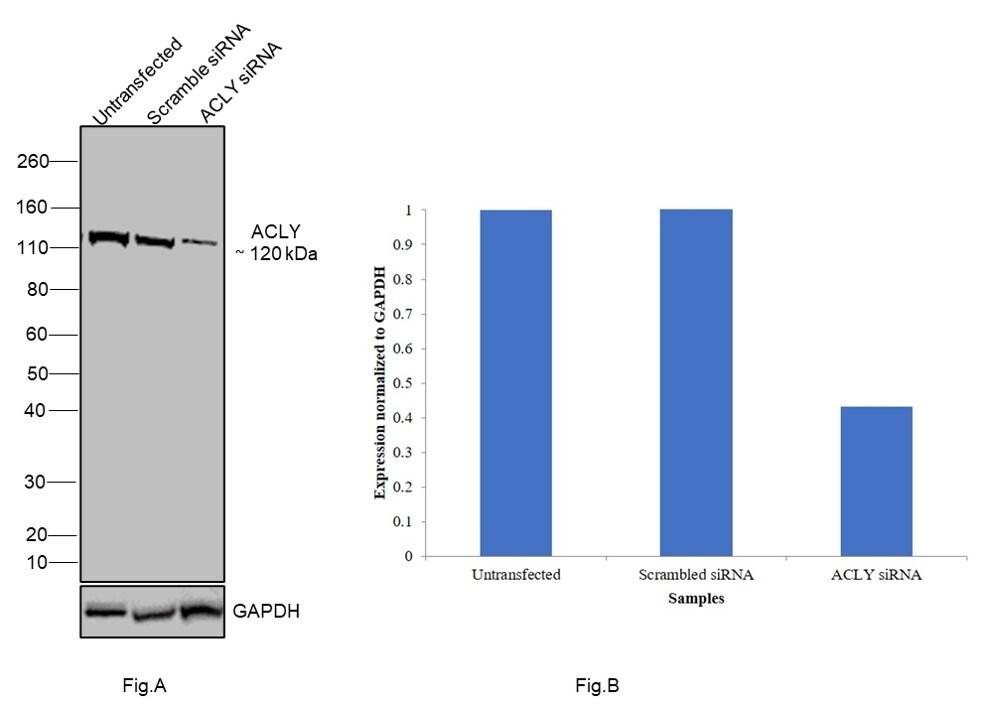 ATP Citrate Lyase Antibody in Knockdown