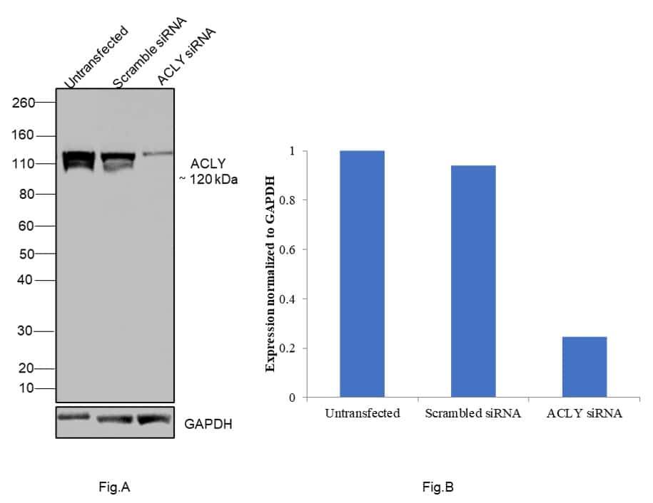 ATP Citrate Lyase Antibody in Western Blot (WB)