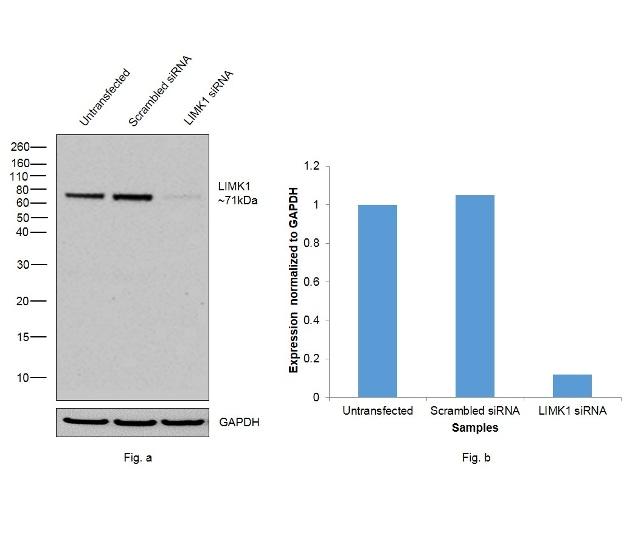 LIMK1 Antibody in KnockDown