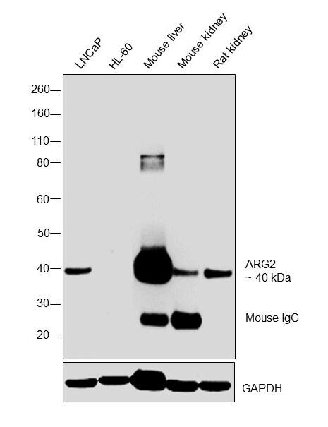 Arginase 2 Antibody in Western Blot (WB)