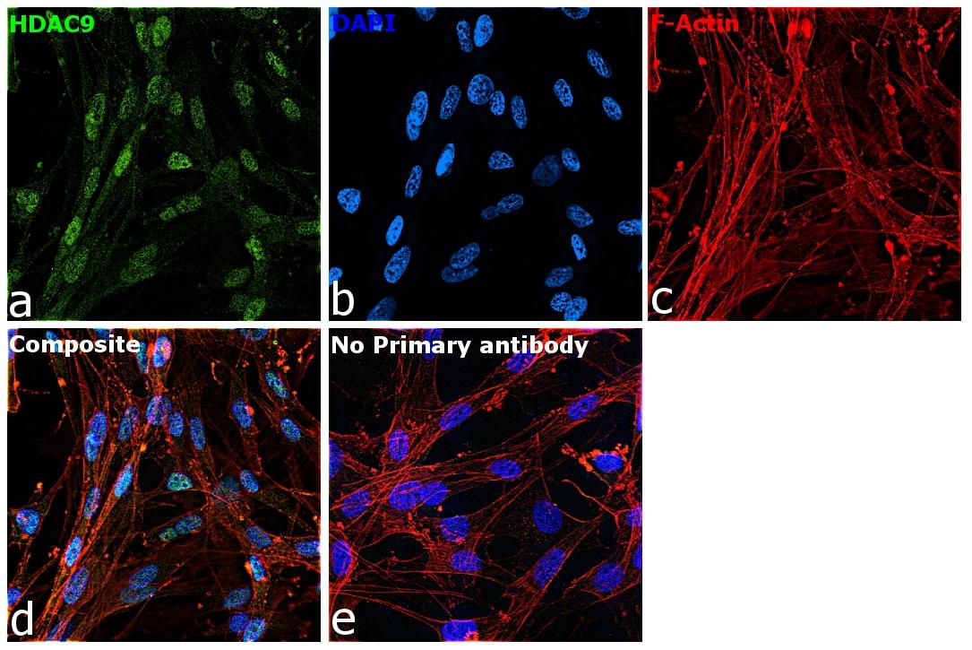 HDAC9 Antibody in Immunocytochemistry (ICC)