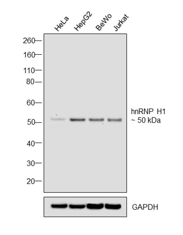 hnRNP H1 Antibody in Western Blot (WB)