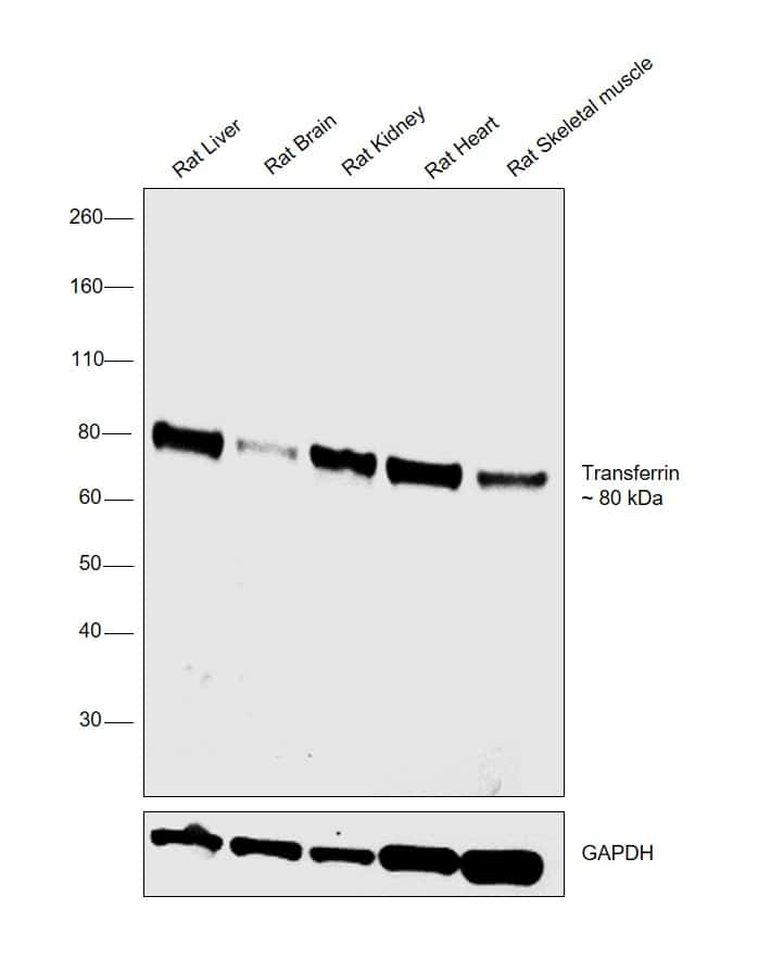 Transferrin Antibody in Relative expression