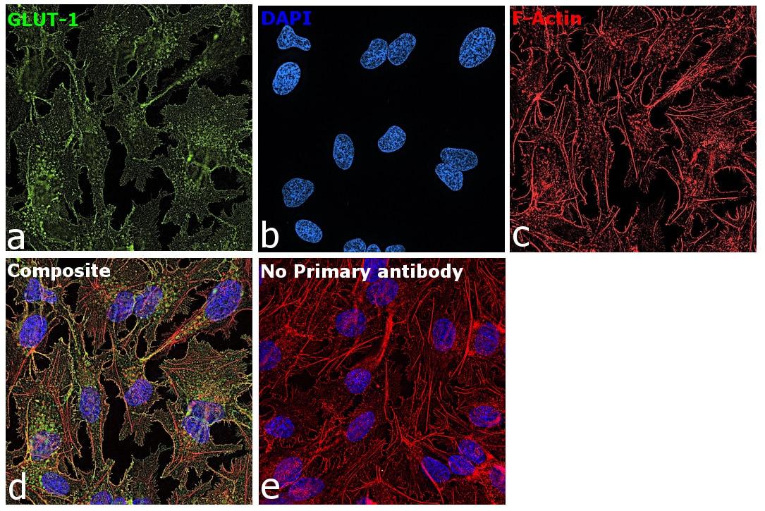 GLUT1 Antibody in Immunocytochemistry (ICC)