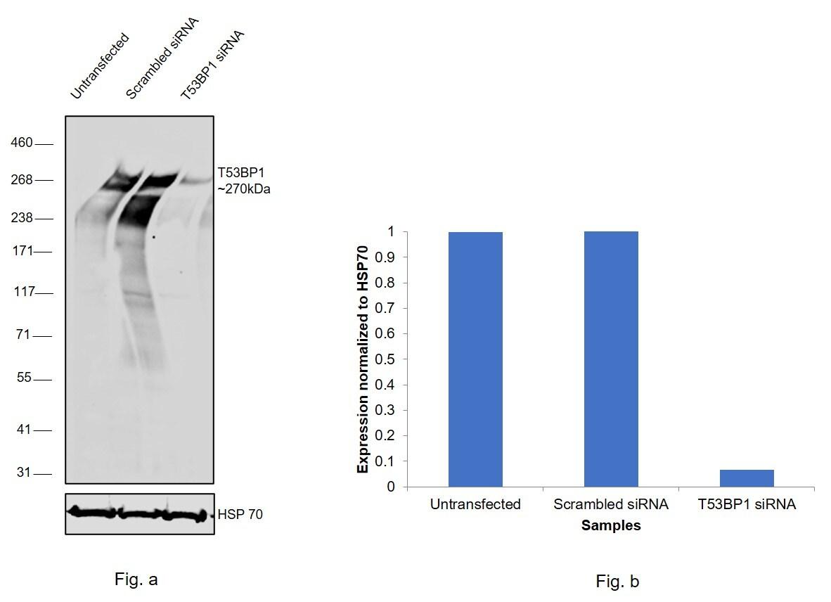 53BP1 Antibody in Western Blot (WB)