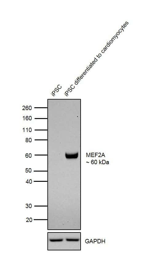 MEF2A Antibody in Relative expression