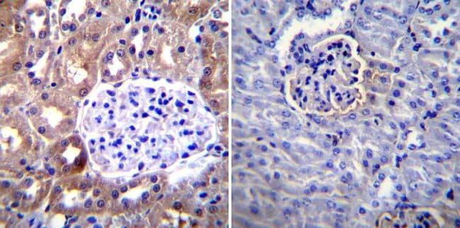 ICAM-1 Antibody in Immunohistochemistry (IHC)