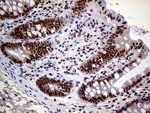 MAGEB4 Antibody in Immunohistochemistry (Paraffin) (IHC (P))