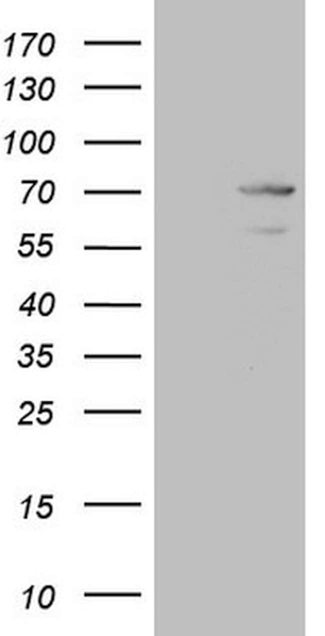 MAK Antibody in Western Blot (WB)