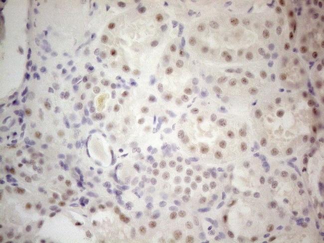 MALT1 Antibody in Immunohistochemistry (Paraffin) (IHC (P))