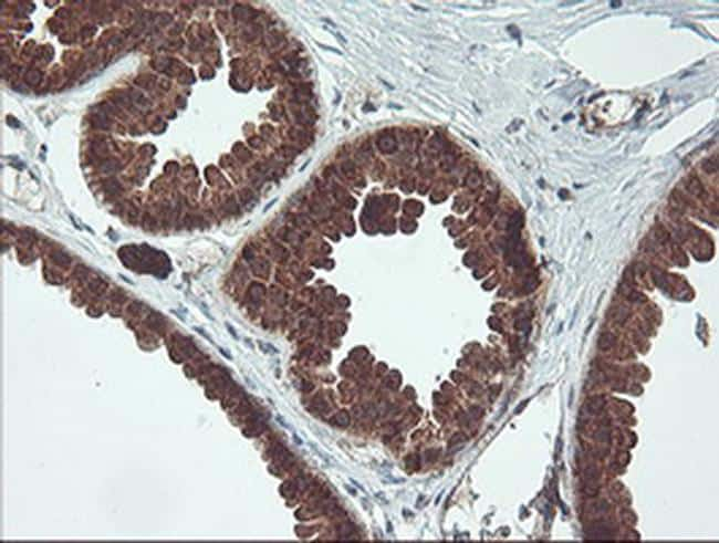MAOA Antibody in Immunohistochemistry (Paraffin) (IHC (P))