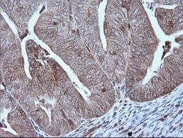 MAP2K1 Antibody in Immunohistochemistry (Paraffin) (IHC (P))