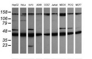 MAP2K1 Antibody in Western Blot (WB)