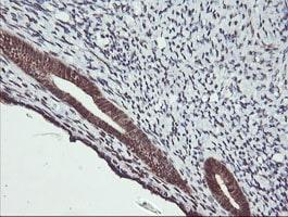 MAP2K2 Antibody in Immunohistochemistry (Paraffin) (IHC (P))