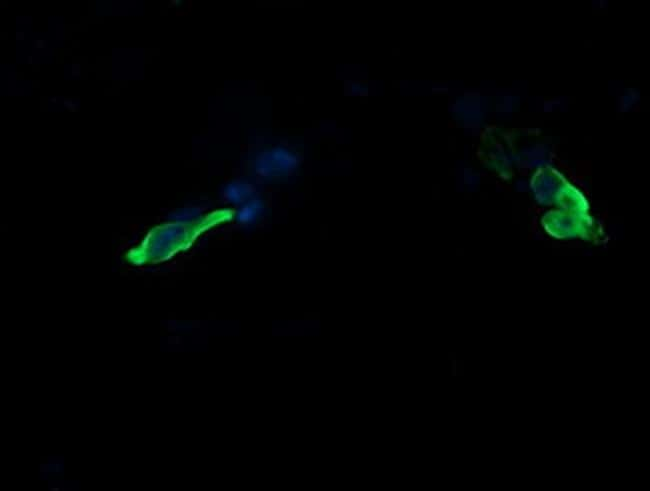 MAP2K3 Antibody in Immunofluorescence (IF)