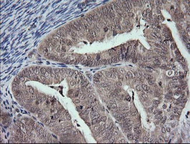 MAP2K3 Antibody in Immunohistochemistry (Paraffin) (IHC (P))
