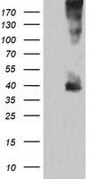 MAP2K3 Antibody in Western Blot (WB)