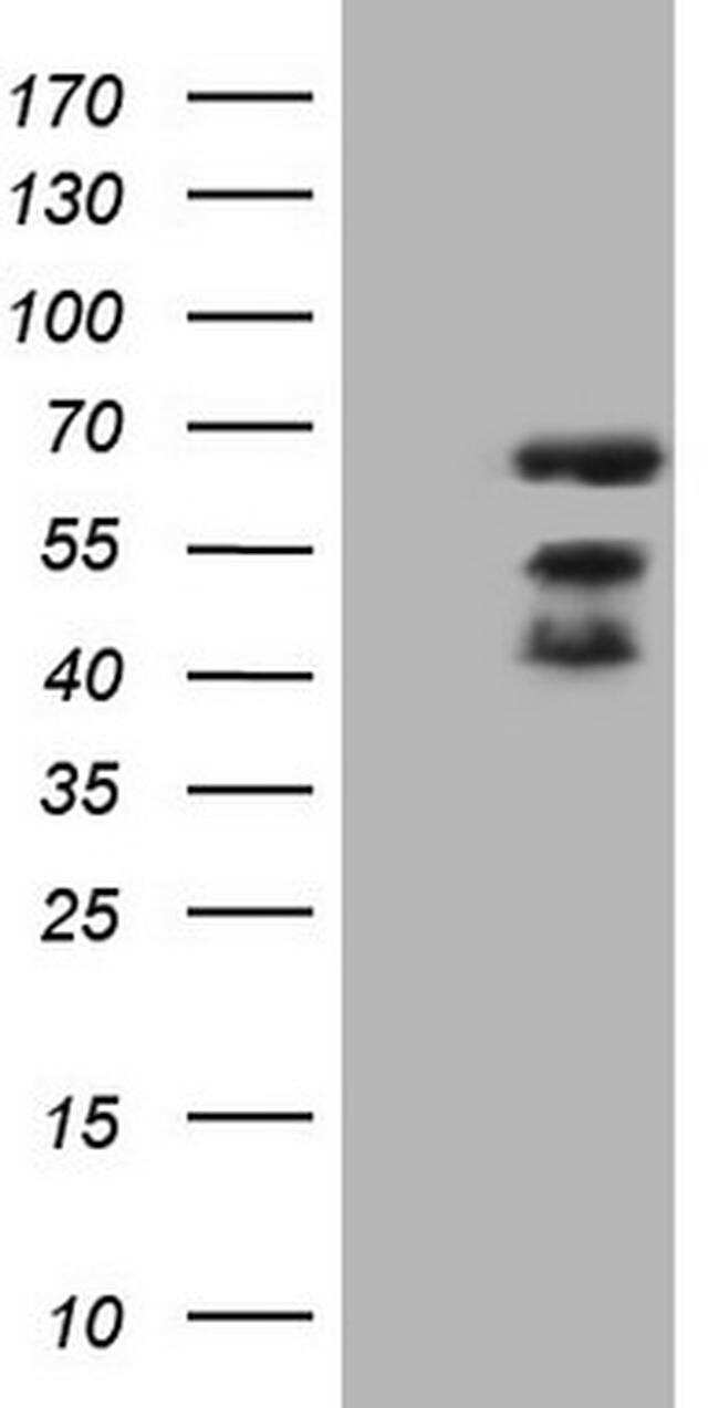 MAP3K8 Antibody in Western Blot (WB)