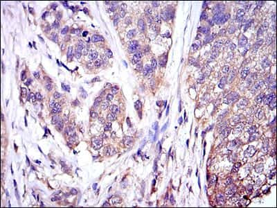 ERK1 Antibody in Immunohistochemistry (IHC)
