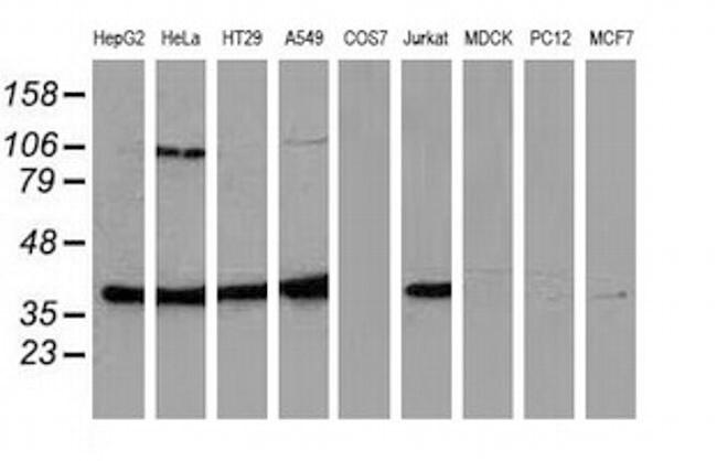MAPK7 Antibody in Western Blot (WB)