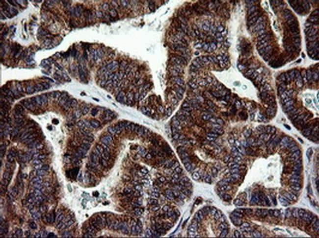 MAPK9 Antibody in Immunohistochemistry (Paraffin) (IHC (P))