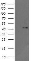 MAPK9 Antibody in Western Blot (WB)