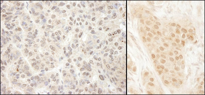 MCAK Antibody in Immunohistochemistry (IHC)