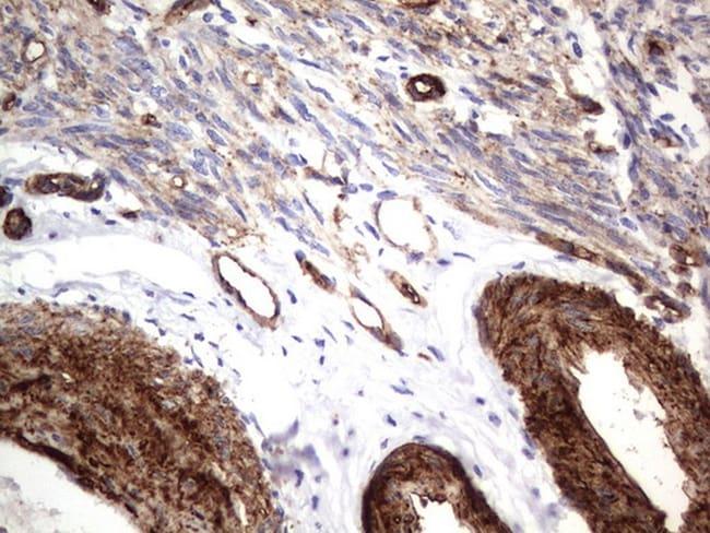 MCAM Antibody in Immunohistochemistry (Paraffin) (IHC (P))
