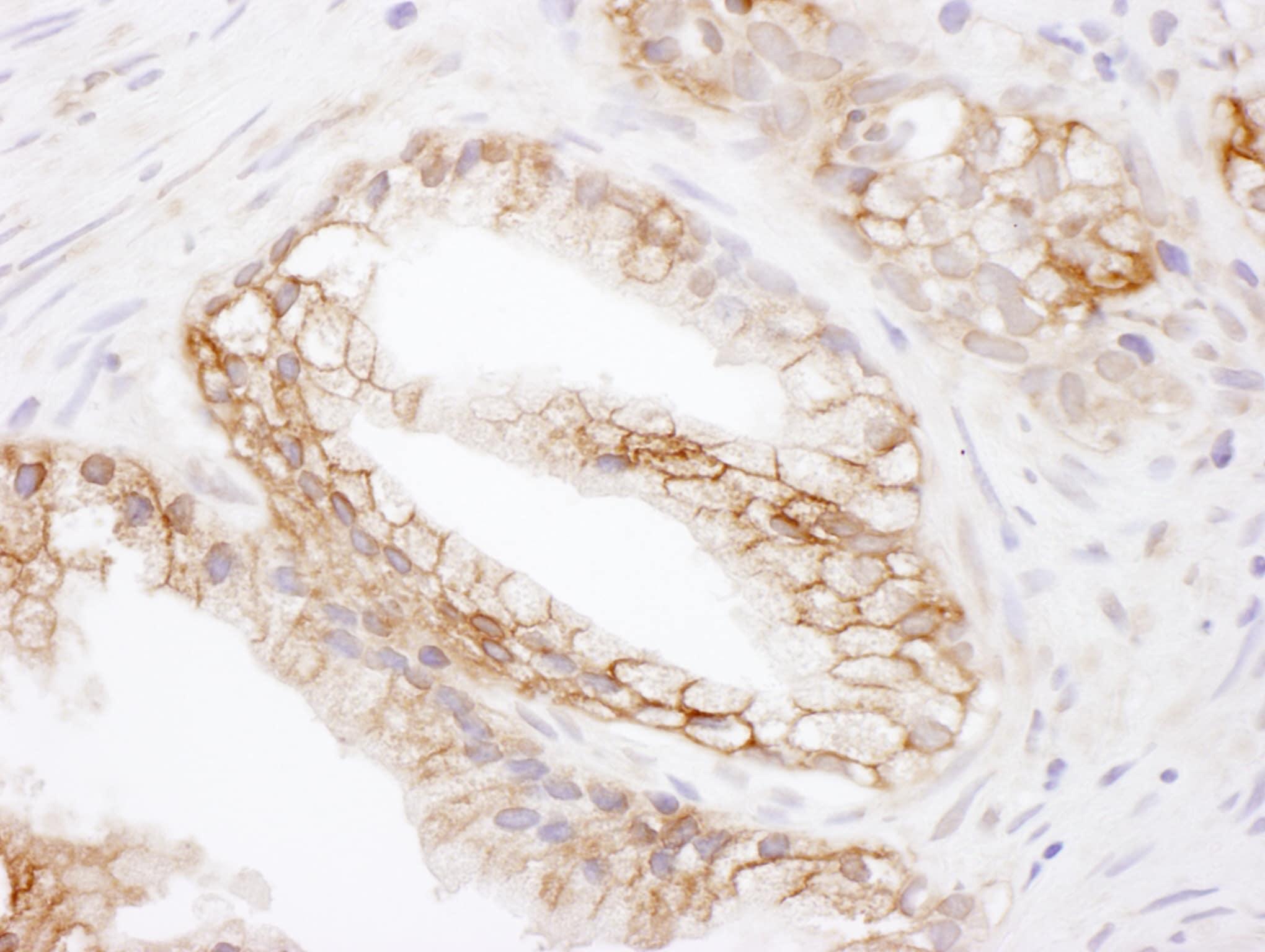 MCT1 Antibody in Immunohistochemistry (IHC)