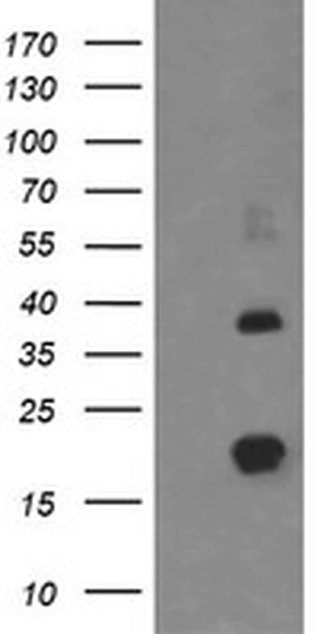 MCTS1 Antibody in Western Blot (WB)