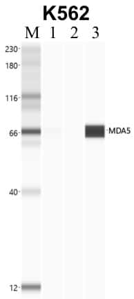 MDA5 Antibody in Immunoprecipitation (IP)
