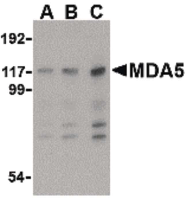 MDA5 Antibody in Western Blot (WB)