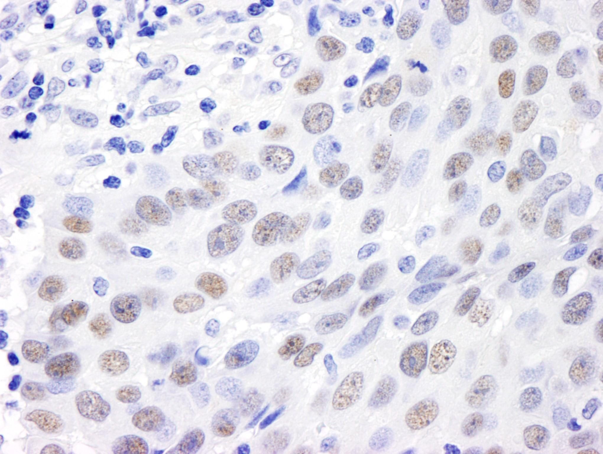 MDC1 Antibody in Immunohistochemistry (IHC)